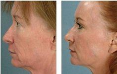 Sagging skin tightening with microneedling