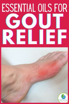 Gout Relief, Pain Relief, Essential Oils For Gout, Gout Remedies, Natural Remedies, Young Living Oils, Healthy Oils, Stay Healthy, Simple