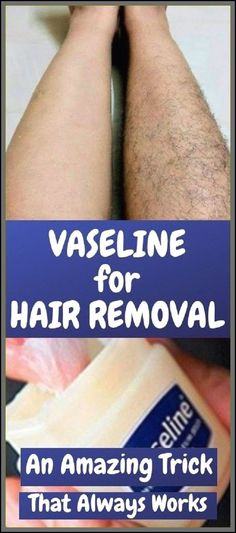 Remove Unwanted Hair Permanently In Three Days , No Shave-No Wax !!!! #HairRemovalMethods Permanent Facial Hair Removal, Upper Lip Hair Removal, Hair Removal Spray, Face Hair Removal, Remove Unwanted Facial Hair, Hair Removal For Men, Unwanted Hair, Electrolysis Hair Removal, Ingrown Hair Removal
