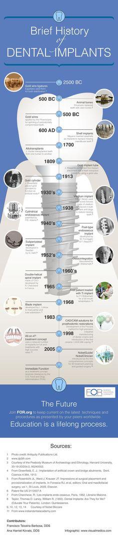 Dental Implants History #dentalimplants #dentistry #dental
