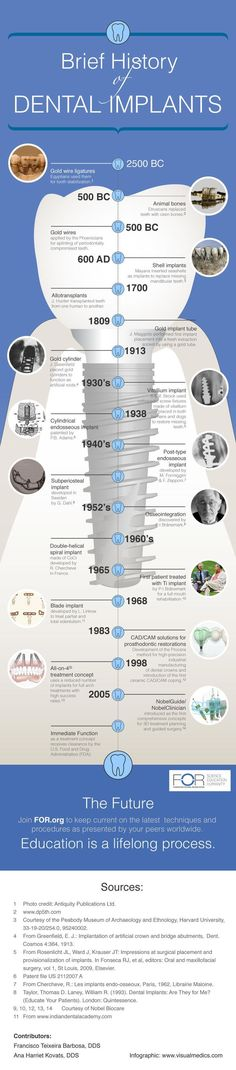 Dental Implants History #dentalimplants #dentistry #dental