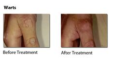 Warts - pictures of pre and post treatments - usually cleared within 1 treatment