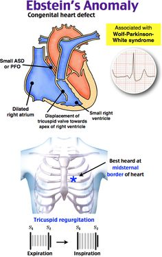 Herniation syndromes vital signs will present heart rate 40 beats ebsteins anomaly ccuart Images