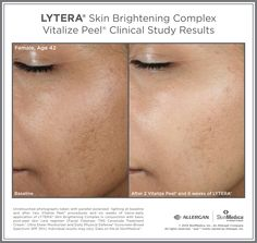 Results of Vitalize Peel with Lytera to target overall skin texture and tone.