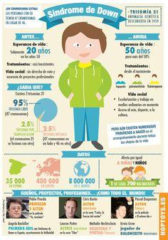 Infografía con todo la información sobre el Síndrome de Down