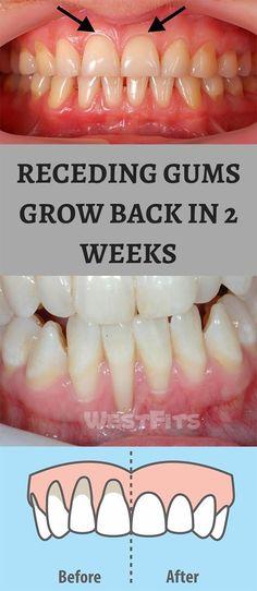 Natural Ways To Grow Back Your Receding Gums - Oral Health Oral Health, Dental Health, Dental Care, Health Care, Gum Health, Teeth Health, Dental Implants, Receeding Gums, Natural Remedies