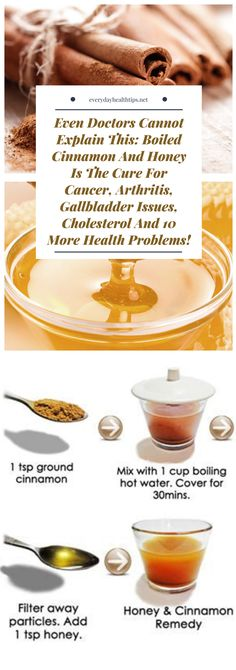 Arthritis Remedies Hands Natural Cures - Even Doctors Cannot Explain This: Boiled Cinnamon And Honey Is The Cure For Cancer, Arthritis, Gallbladder Issues, Cholesterol And 10 More Health Problems! Natural Cure For Arthritis, Natural Cancer Cures, Types Of Arthritis, Natural Cures, Natural Healing, Arthritis Remedies, Health Remedies, Rheumatoid Arthritis, Arthritis