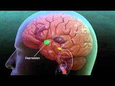 Deep Brain Stimulation explanation