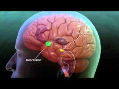 Deep Brain Stimulation explanation | Repinned by @drbrunogallo