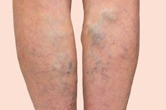 Varis ağrısı için ne yapılır? Bitkisel kürler nelerdir? | Sağlık Meskeni Varicose Veins Causes, Funny Marriage Advice, Increase Hair Growth, Just Letting You Know, Arthritis Treatment, Hair Starting, Beauty Tips For Hair, Chinese Medicine, Home Remedies