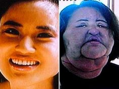Like anything, addiction is a reality, clearly this is an example of that. This woman injected herself with cooking oil because of her cosmetic surgery addiction. While some may laugh and ridicule, others might recognise this as a serious problem. Bodily dysmorphic disorder perhaps? Who knows