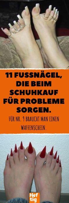 11 Fußnägel, die beim Schuhkauf für Probleme sorgen. #fuß #fußnaegel #naegel #pedikuere #nagelpflege #fußpflege