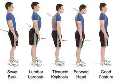 Lumbar Lordosis, Thoracic Kyphosis and other postures
