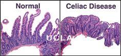 celiac   Normal cell and celiac disease