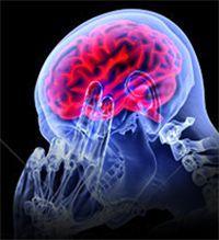 Lyme Disease Seizures Treatment Natural Remedies