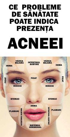 Iata ce probleme de sanatate poate semnala prezenta acneei. Ai grija de tine !
