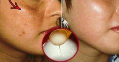 1 Vaso Al Dia De Agua Con Vinagre De Manzana y Bicarbonato de Sodio: Sé Testigo De Un Milagro! – Super Remedios