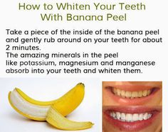 Get a beautiful smile without spending a fortune - Homemade remedies for whither teeth