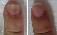 I funghi ai piedi e alle unghie - quali sono i pericoli e come sbarazzarsi di loro?