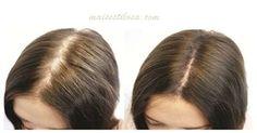 Melhor shampoo caseiro para queda de cabelo. Aprenda como fazer. Estimula o crescimento, age contra a queda e a calvície.. Clique e confira!