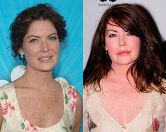 Qué cambio! El extreme makeover de las celebrities antes y después del bisturí