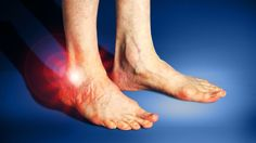 New blood test to detect rheumatoid arthritis