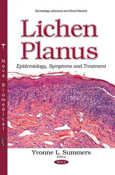 How To Cure Lichen Sclerosus Naturally