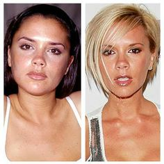 Celebrities Before And After Nose Job | Healthy Women Blog!
