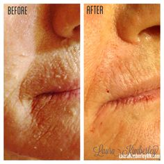 Improvement of Marionette Lines, Nasolabial Folds, and Vertical Lip Lines with Juvederm and Belotero. Results will continue to improve over the next few days. Marionette Lines, Nasolabial Folds, How To Line Lips