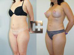 Vor und nach Fettabsaugung im Bereich des Bauches und der Flanken - es wurde zusätzlich eine Brustvergrößerung durchgeführt Liposuction, Bikinis, Swimwear, Fashion, Wels, Linz, La Mode, Fashion Illustrations, Fashion Models