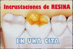 Incrustacion-dental
