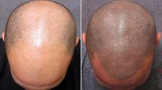 Losing your hair? Discover the natural secret to preventing further hair loss and re-growing lost hair with The Regrow Hair Protocol. Hair Tattoos, Cool Tattoos, Awesome Tattoos, Crazy Tattoos, Bald Tattoo, Uv Tattoo, White Tattoos, Serum, Hair Loss Treatment