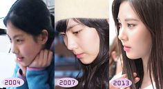 Disc Official Plastic Surgery Thread Page 9 Celebrity Photos SooYoung Have Plastic Surgery Collection