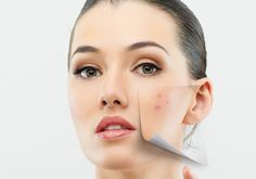 17+Simple+Home+Remedies+For+Pimples/Acne