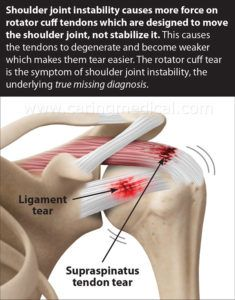 to Rotator Cuff Tear Surgery The evidence for non-surgical options Shoulder Joint InstabilityShoulder Joint Instability Shoulder Tendonitis, Shoulder Dislocation, Shoulder Injuries, Shoulder Rehab, Shoulder Surgery, Shoulder Joint, Muscle Anatomy, Body Anatomy, Shoulder Pain Exercises