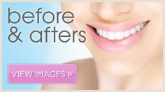 before and afters dentist