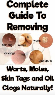 There are several tips that you can use that will help you to both prevent warts and to help keep them from spreading once they appear. The...