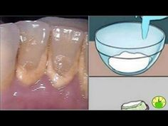 THIS MOUTHWASH REMOVES PLAQUE FROM TEETH IN 2 MINUTES! - YouTube