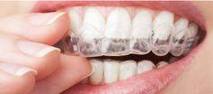 Trouvez les mutuelles avec un fort #remboursement pour les implants #dentaires http://www.mutuelles-pas-cheres.org/mutuelle-dentaire