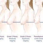 Does Breast-Feeding Cause Saggy Breasts?