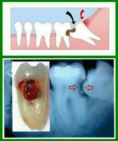 Infographic showing an example of how an impacted(unerupted) teeth can cause pain & various symptoms.