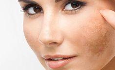"""Melazma alias """"tehotenská"""" maska– ako sa jej vyhnúť a ako ju liečiť? Hair Academy, Skin Care Tips, Your Skin, Anti Aging, Type, Health, Per Diem, Photos, Salud"""