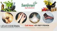 #Leucoderma can be treated and skin can become normal as before with natural pigmentation and glow. Sanjivani Ayurvedashram offers the best and proven panchakarma treatment for the cure of vitiligo.