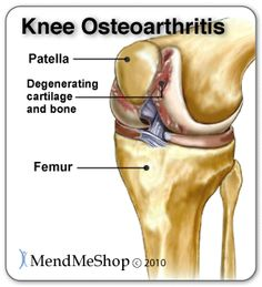 Osteoarthritis in the knee causes degeneration of the articular cartilage and bone