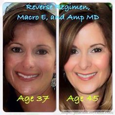 So maybe your skin is good and you're aging like you thought you would. Fine…
