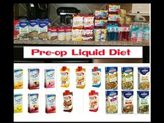 Pre-op Liquid Diet: My Experience before VSG Surgery Vsg Surgery, Gastric Sleeve Surgery, Weight Loss Surgery, Pre Gastric Sleeve Diet, Pre Bariatric Surgery Diet, Bypass Surgery, Bariatric Eating, Bariatric Recipes, Diet Recipes