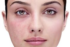 Check our new article dedicated to Rosacea issues!