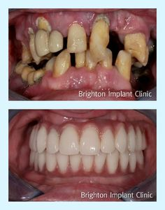 Amazing full-mouth rehabilitation using dental-implants.