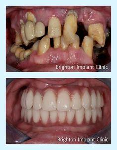 Amazing full-mouth rehabilitation using dental-implants. Courtesy - Brighton Implant Clinic.
