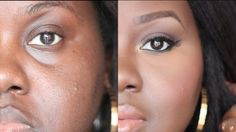 How to Conceal Deep-Set Under-Eyes